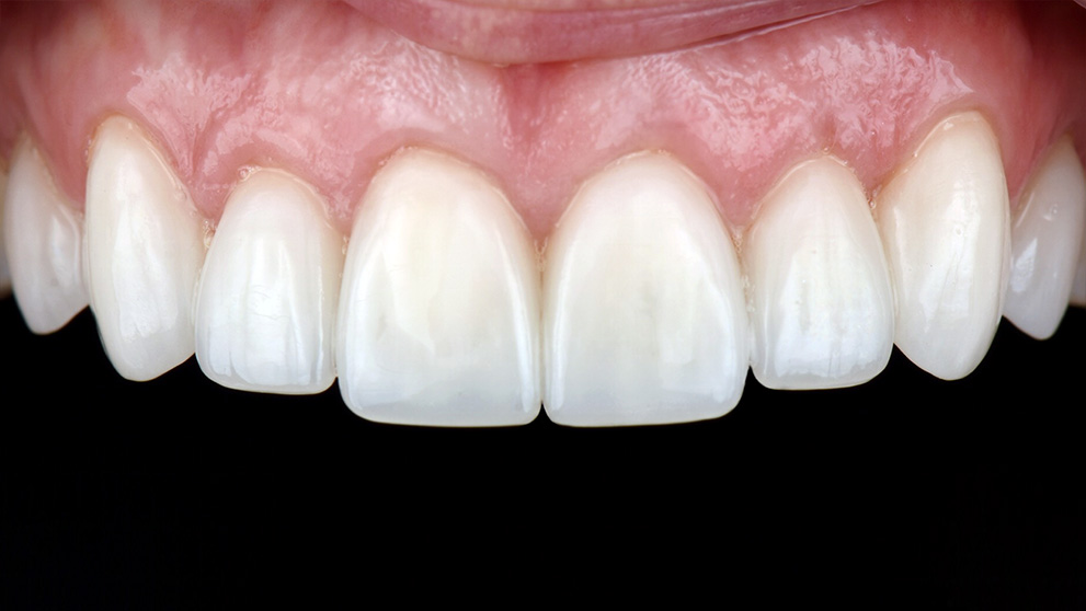 Upper Teeth After Veneers