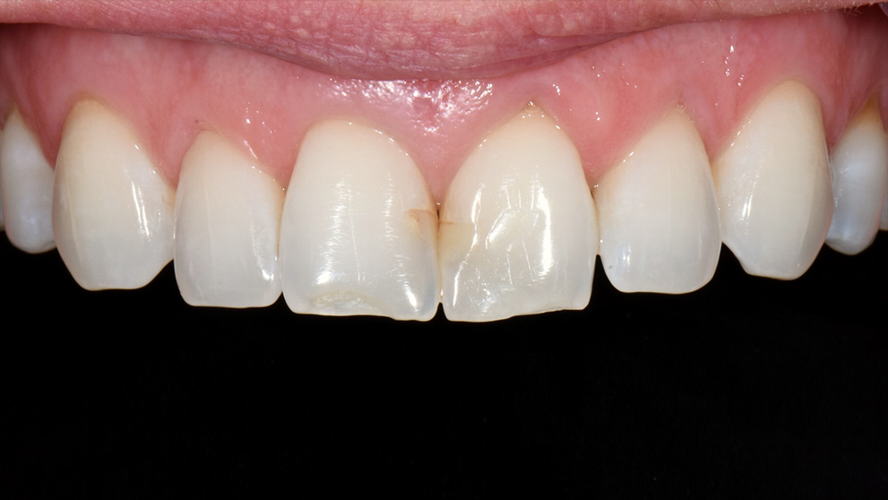 Upper Teeth Before Veneers